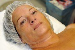 Ošetření kosmetikou 3LAB - 21. září. 2011. Stav po aplikaci