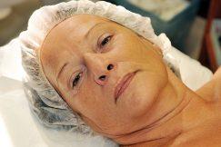 Ošetření kosmetikou 3LAB - 21. září. 2011. Stav před aplikací
